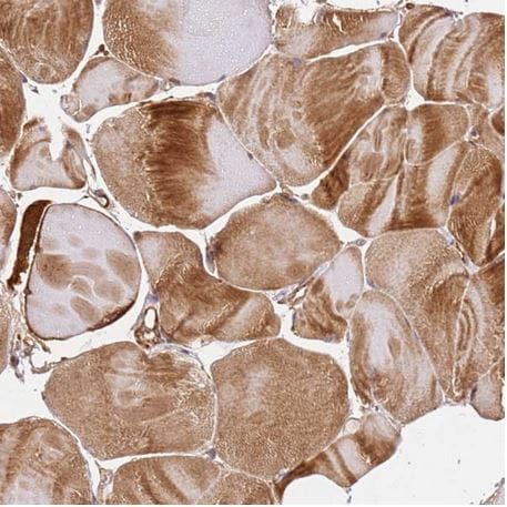 Immunohistochemistry (Formalin/PFA-fixed paraffin-embedded sections) - Anti-KATNAL2 antibody (ab184829)