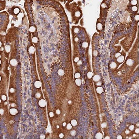 Immunohistochemistry (Formalin/PFA-fixed paraffin-embedded sections) - Anti-ATXN2L antibody (ab184834)