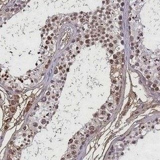 Immunohistochemistry (Formalin/PFA-fixed paraffin-embedded sections) - Anti-Histone H1t2 antibody - N-terminal (ab184838)