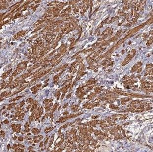 Immunohistochemistry (Formalin/PFA-fixed paraffin-embedded sections) - Anti-CCDC154 antibody (ab184841)