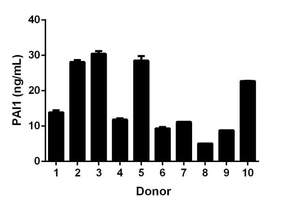 Titration of individual donor serum samples to within working range of the assay.
