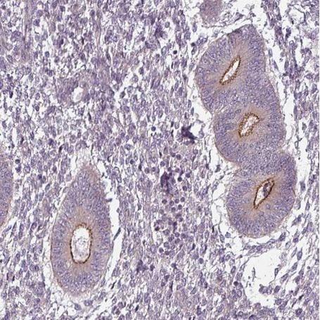 Immunohistochemistry (Formalin/PFA-fixed paraffin-embedded sections) - Anti-SLC16A9 antibody (ab184870)