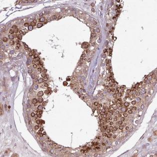 Immunohistochemistry (Formalin/PFA-fixed paraffin-embedded sections) - Anti-PDPR antibody (ab184874)