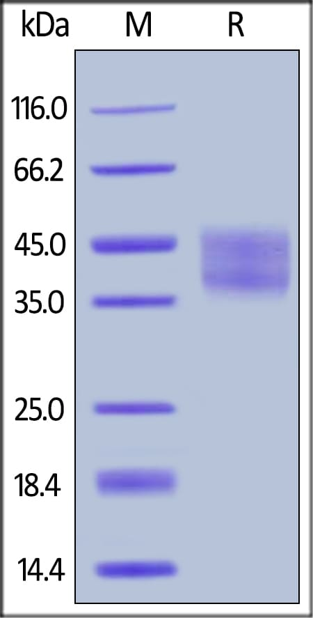 SDS-PAGE - Recombinant human IL-21R protein (ab184891)