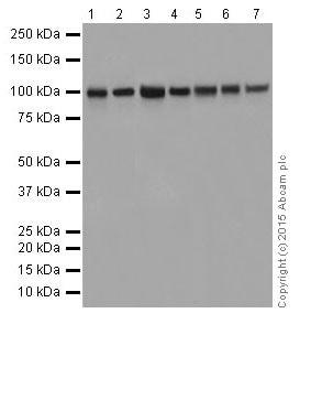 Western blot - Anti-CTNNA3 antibody [EPR18307] (ab184916)