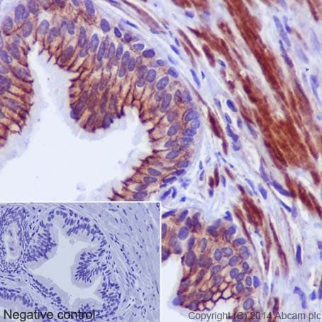 Immunohistochemistry (Formalin/PFA-fixed paraffin-embedded sections) - Anti-gamma Catenin antibody [EPR17310] (ab184919)
