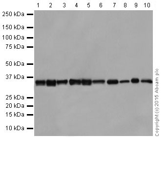 Western blot - Anti-ATF5 antibody [EPR18286] (ab184923)