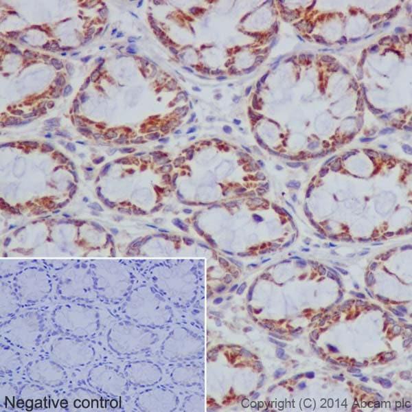 Immunohistochemistry (Formalin/PFA-fixed paraffin-embedded sections) - Anti-Bcl G/BCL2L14 antibody [EPR17666] (ab184925)