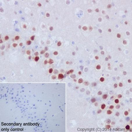 Immunohistochemistry (Formalin/PFA-fixed paraffin-embedded sections) - Anti-Fos B antibody [EPR15905] (ab184938)