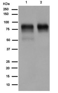 Western blot - Anti-TGF beta Receptor II antibody [EPR14673] (ab184948)