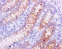 Immunohistochemistry (Formalin/PFA-fixed paraffin-embedded sections) - Anti-CES2 antibody [EPR14856] (ab184957)