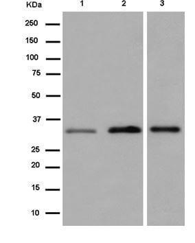 Western blot - Anti-DHRS1 antibody [EPR14021] (ab184959)