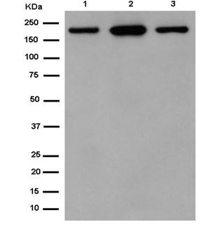 Western blot - Anti-Carboxypeptidase D/CPD antibody [EPR14810] (ab184960)