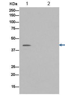 Immunoprecipitation - Anti-PCBP2/hnRNP E2 antibody [EPR14858] (ab184962)