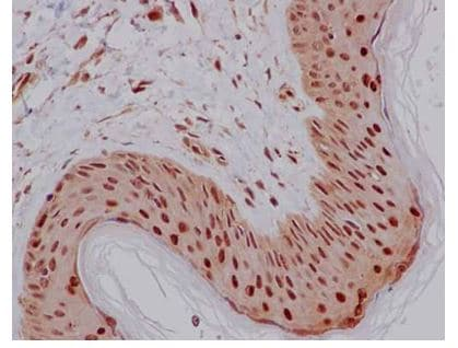 Immunohistochemistry (Formalin/PFA-fixed paraffin-embedded sections) - Anti-PCBP2/hnRNP E2 antibody [EPR14858] (ab184962)