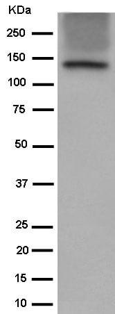 Western blot - Anti-Involucrin antibody [EPR13060(N)] - C-terminal (ab184969)