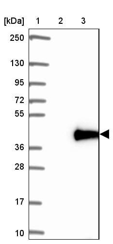 Western blot - Anti-LIN37 antibody (ab184973)