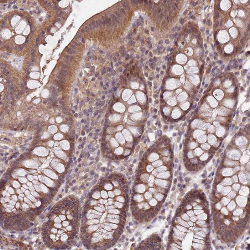 Immunohistochemistry (Formalin/PFA-fixed paraffin-embedded sections) - Anti-LIN37 antibody (ab184973)