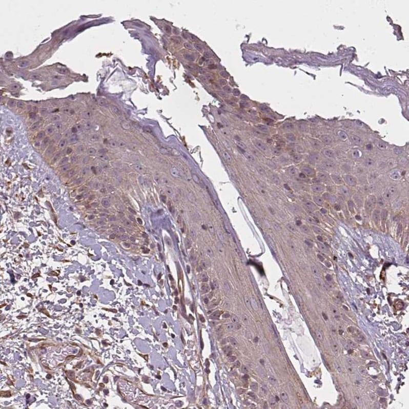 Immunohistochemistry (Formalin/PFA-fixed paraffin-embedded sections) - Anti-DIMT1L antibody (ab184978)