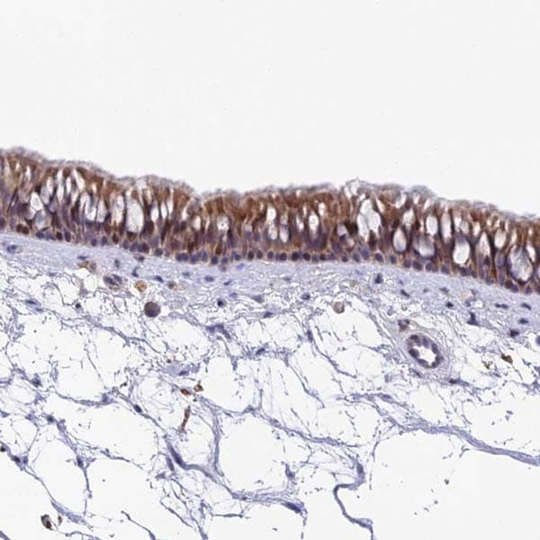 Immunohistochemistry (Formalin/PFA-fixed paraffin-embedded sections) - Anti-PUS10 antibody (ab184981)