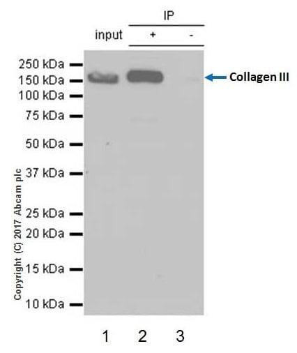 Immunoprecipitation - Anti-Collagen III antibody [EPR17673] (ab184993)