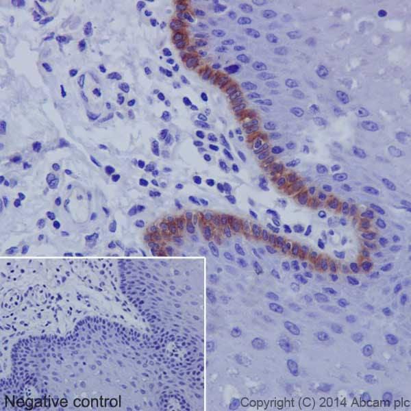 Immunohistochemistry (Formalin/PFA-fixed paraffin-embedded sections) - Anti-Collagen XVII antibody [EPR18614] (ab184996)