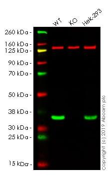 Western blot - Anti-VDAC1 / Porin antibody [EPR10852(B)] - Mitochondrial Loading Control (HRP) (ab185063)