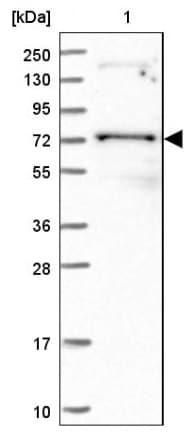 Western blot - Anti-PUS10 antibody (ab185078)