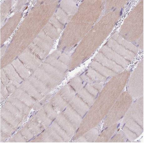Immunohistochemistry (Formalin/PFA-fixed paraffin-embedded sections) - Anti-UBXN7 antibody (ab185085)