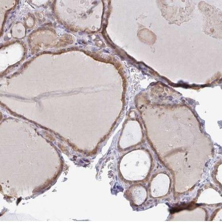 Immunohistochemistry (Formalin/PFA-fixed paraffin-embedded sections) - Anti-Derlin-2 antibody (ab185087)