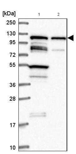 Western blot - Anti-TBC1D2B antibody (ab185102)