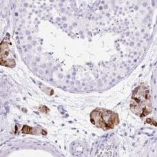 Immunohistochemistry (Formalin/PFA-fixed paraffin-embedded sections) - Anti-STOX2 antibody (ab185112)