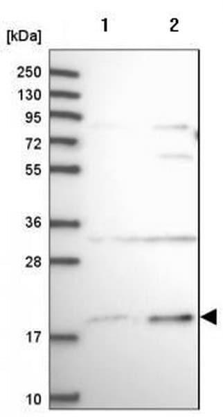 Western blot - Anti-SLC41A3 antibody (ab185122)