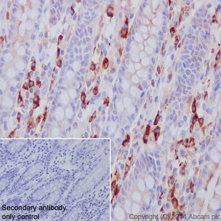 Immunohistochemistry (Formalin/PFA-fixed paraffin-embedded sections) - Anti-Lambda Light chain antibody [EPR5367-62] - BSA and Azide free (ab185131)