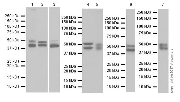 Western blot - Anti-GSK3 beta + GSK3 alpha antibody [EPR18814-102] (ab185141)