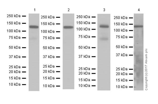 Western blot - Anti-Eph receptor A2 antibody [EPR17660-120] (ab185156)
