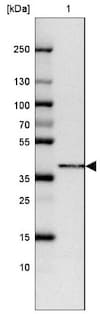Western blot - Anti-FAM84B antibody (ab185202)