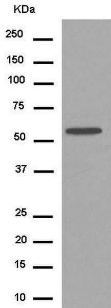Western blot - Anti-Cytochrome p450 2C19 antibody [EPR6577] - C-terminal (ab185213)