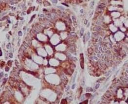 Immunohistochemistry (Formalin/PFA-fixed paraffin-embedded sections) - Anti-TREX1 antibody [EPR14985] (ab185228)