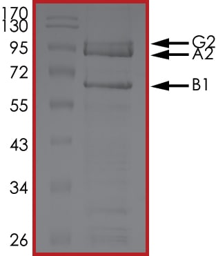 SDS-PAGE - Recombinant human AMPK alpha 2 + beta 1 + gamma 2 protein (ab185258)