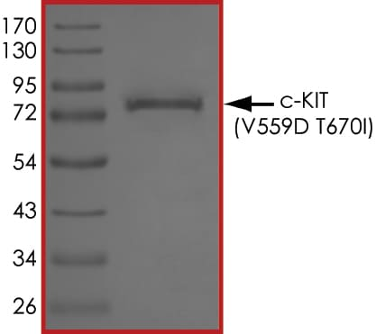 SDS-PAGE - Recombinant human c-Kit (mutated V559 D + T670 I) protein (ab185276)