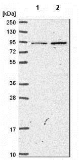Western blot - Anti-Malignant fibrous histiocytoma antibody (ab185289)