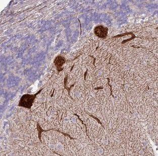 Immunohistochemistry (Formalin/PFA-fixed paraffin-embedded sections) - Anti-PPP1R35 antibody (ab185292)