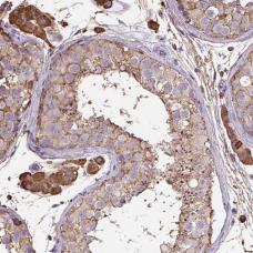 Immunohistochemistry (Formalin/PFA-fixed paraffin-embedded sections) - Anti-MAGEB5  antibody - N-terminal (ab185316)