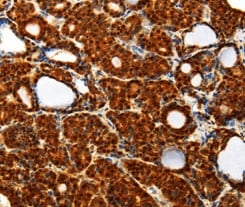 Immunohistochemistry (Formalin/PFA-fixed paraffin-embedded sections) - Anti-Thioredoxin / TRX antibody (ab185329)