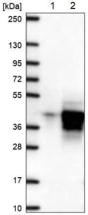 Western blot - Anti-DUBA2 antibody (ab185352)