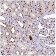 Immunohistochemistry (Formalin/PFA-fixed paraffin-embedded sections) - Anti-SWSAP1 antibody (ab185360)
