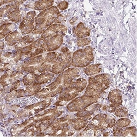 Immunohistochemistry (Formalin/PFA-fixed paraffin-embedded sections) - Anti-RPS23 antibody (ab185372)