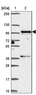 Western blot - Anti-SMC5 antibody (ab185373)