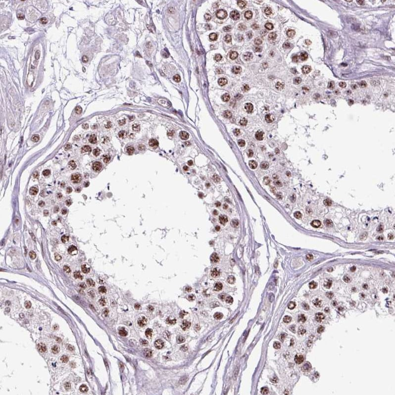 Immunohistochemistry (Formalin/PFA-fixed paraffin-embedded sections) - Anti-SMC5 antibody (ab185373)